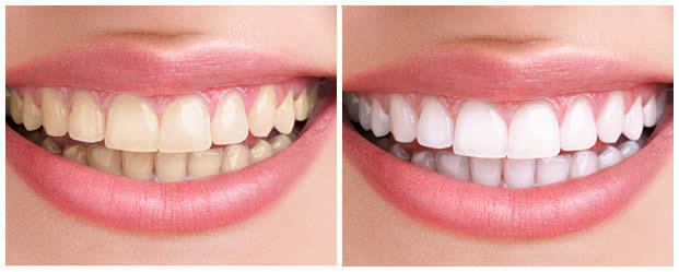 Best Dental Implants Service