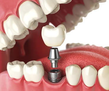 dental implants dentist