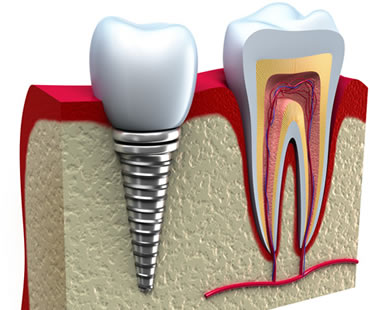 dental implants dentist in Aventura