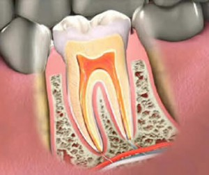 Gum Disease Treatment Aventura