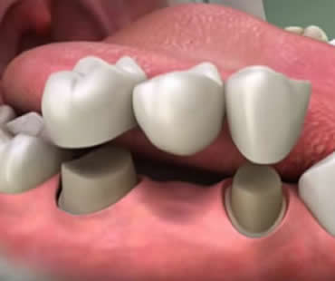 Dental crowns Aventura