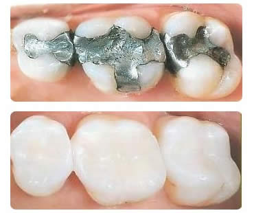 How long do fillings last solutioingenieria Images