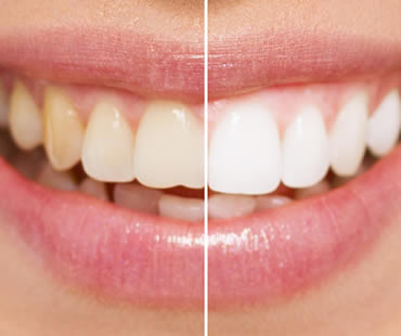 Teeth whitening Aventura