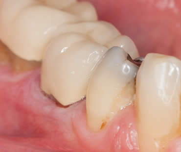 Tips about Receding Gums